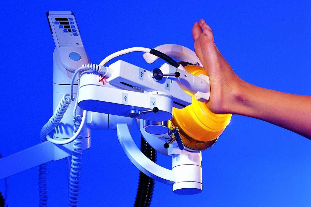 体外衝撃波疼痛治療